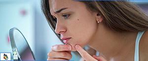 Acne Treatment in Austin, TX