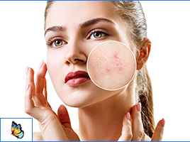 Acne Treatment - Glo Med Spa & Wellness in Austin, TX